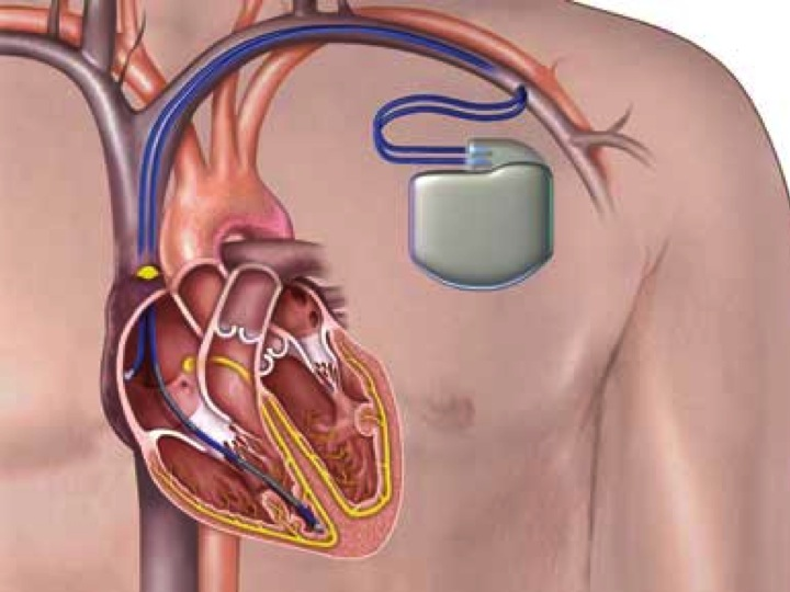 Implantable Cardioverter-Defibrillators at End of Battery ... |Defibrillator Surgery Risks